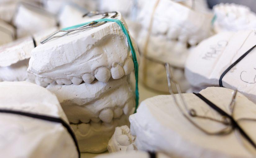 Zła dieta odżywiania się to większe niedostatki w zębach oraz także ich zgubę